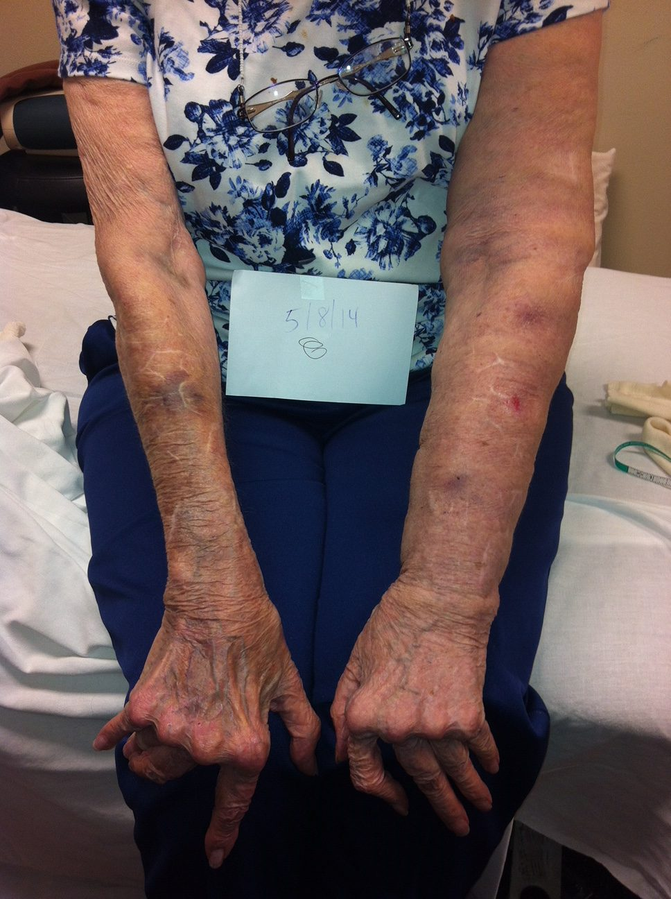 UE Lymphedema After